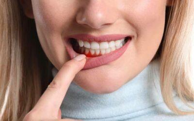 Eine gesunde Mundhöhle ist COVID-19 Schutz! 🦷🍀