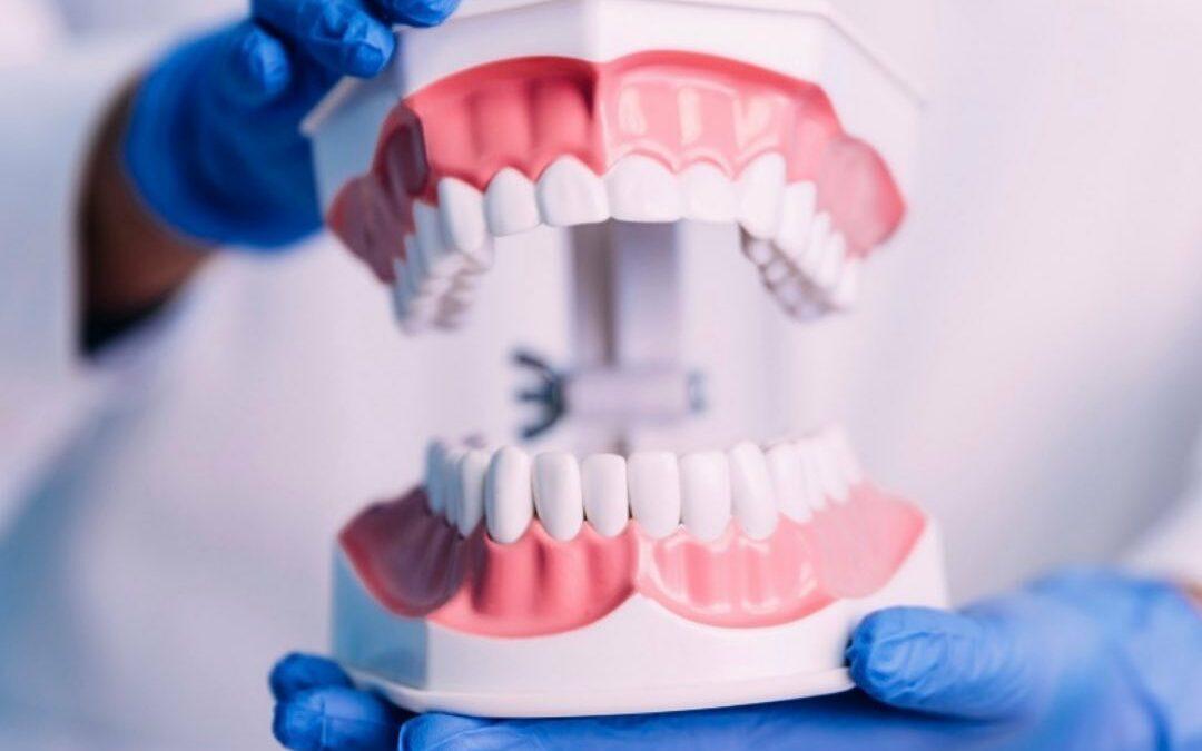 ➡️ Was ist Parodontose? 🦷