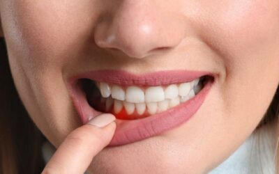 ➡️ Parodontose: Symptome