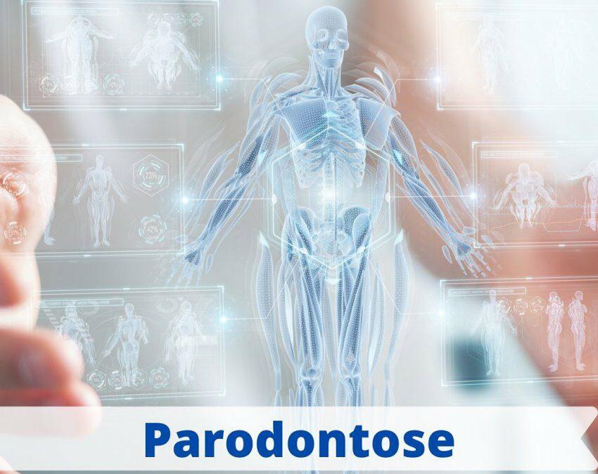 ➡️ Parodontose: Folgen für die Gesamtgesundheit